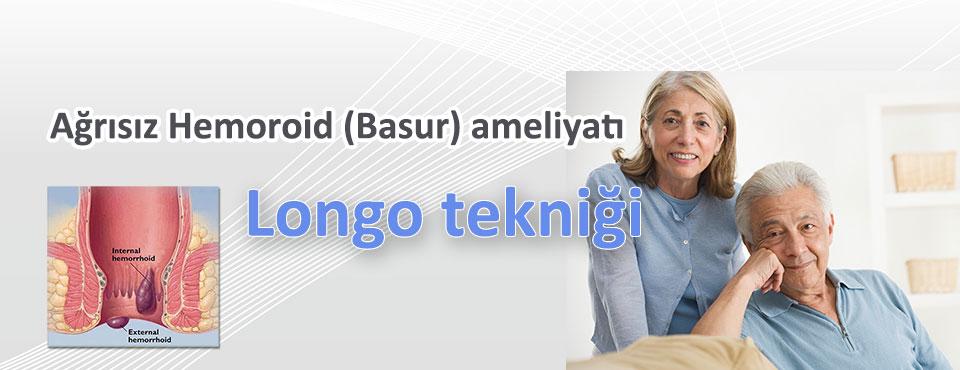longo-hemoroid