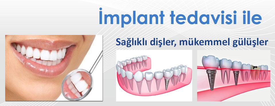 diş-implant